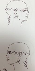 頭痛疼痛図