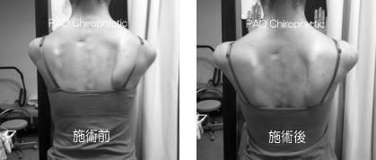 翼状肩甲骨Before After